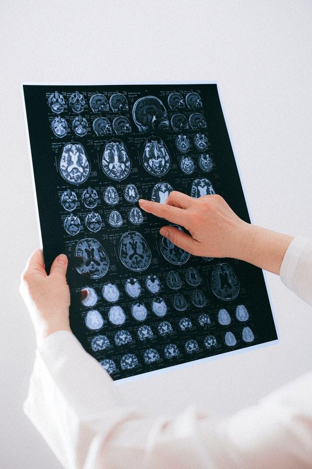 5 Best Neurosurgeons in Auckland